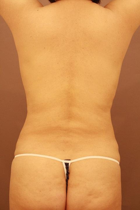 腰の脂肪吸引 術後1カ月の経過