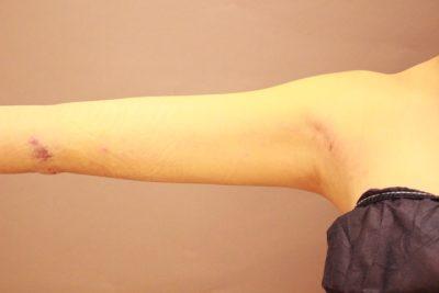 二の腕の脂肪吸引 翌日の内出血の状態