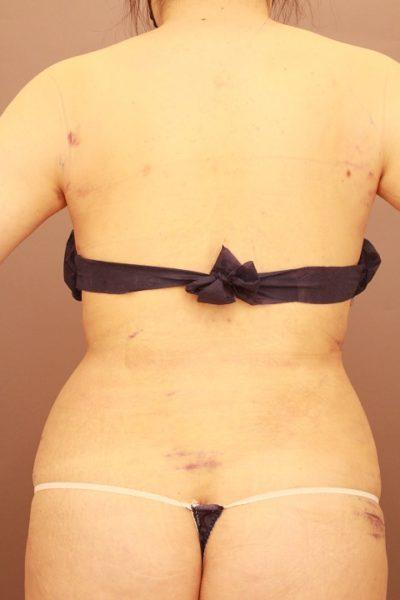 背中の脂肪吸引 翌日の様子