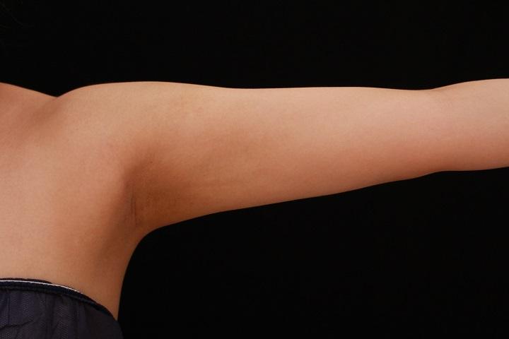二の腕・肩の脂肪吸引 術後3カ月の経過
