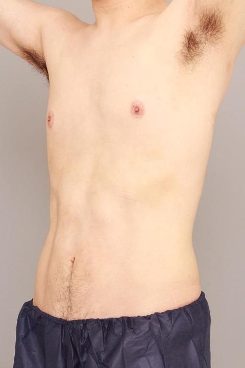 男性のお腹の脂肪吸引 術後1カ月の経過