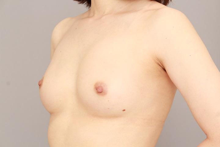 コンデンスリッチ豊胸 術後6カ月の経過