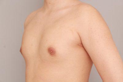 女性化乳房の1か月経過