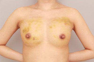 コンデンスリッチ豊胸 術後の内出血の状態