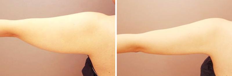 ベイザー脂肪吸引(二の腕+肩)【女性[24歳]6ヶ月後】の症例写真