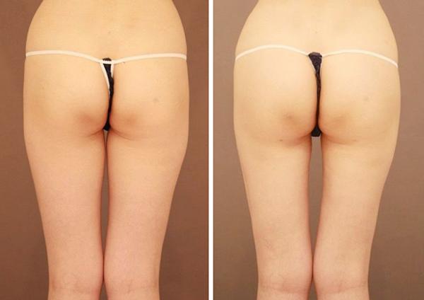 ベイザー脂肪吸引(太もも全周)【女性[34歳]6ヶ月後】の症例写真