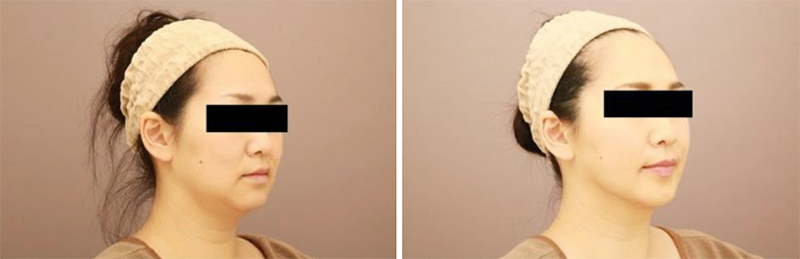 ベイザー脂肪吸引(頬+あご下)【女性[38歳]1ヶ月後】の症例写真