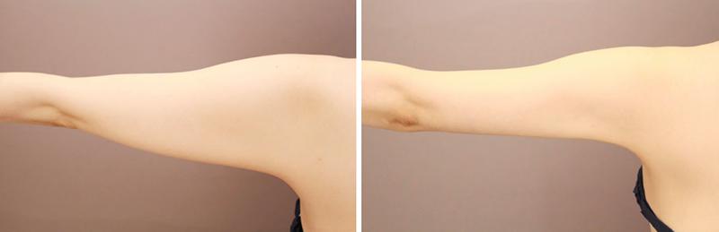 ベイザー脂肪吸引(二の腕+肩)【女性[27歳]1ヶ月後】の症例写真