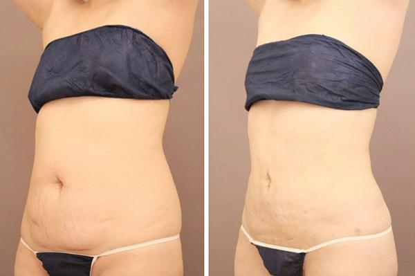 ベイザー脂肪吸引(腹部全体+胸下+腰)【女性[40歳]1ヶ月後】の症例写真