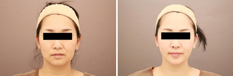 ベイザー脂肪吸引(頬+あご下)【女性[39歳]6ヶ月後】の症例写真