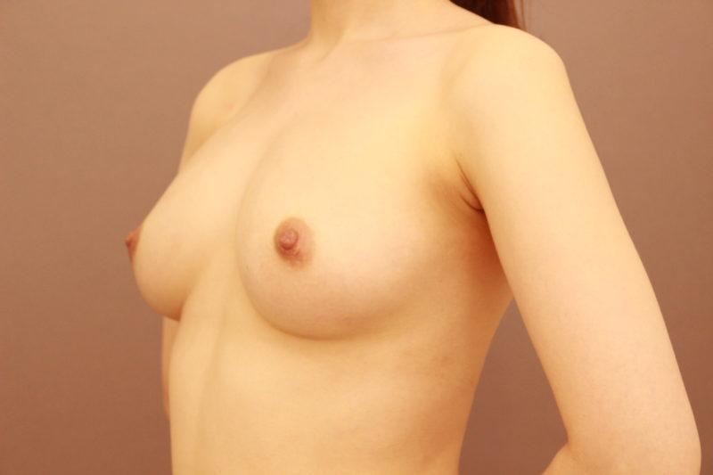 コンデンスリッチ脂肪注入豊胸1か月後