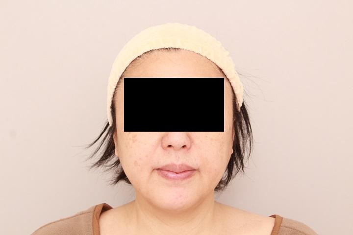 お顔の脂肪吸引 術後3カ月の経過