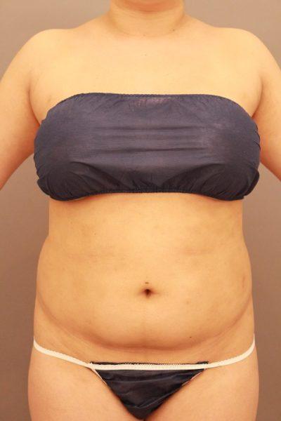 腹部の脂肪吸引 半年経過