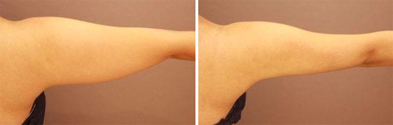 二の腕の脂肪吸引 半年経過/長野寛史オフィシャルブログ