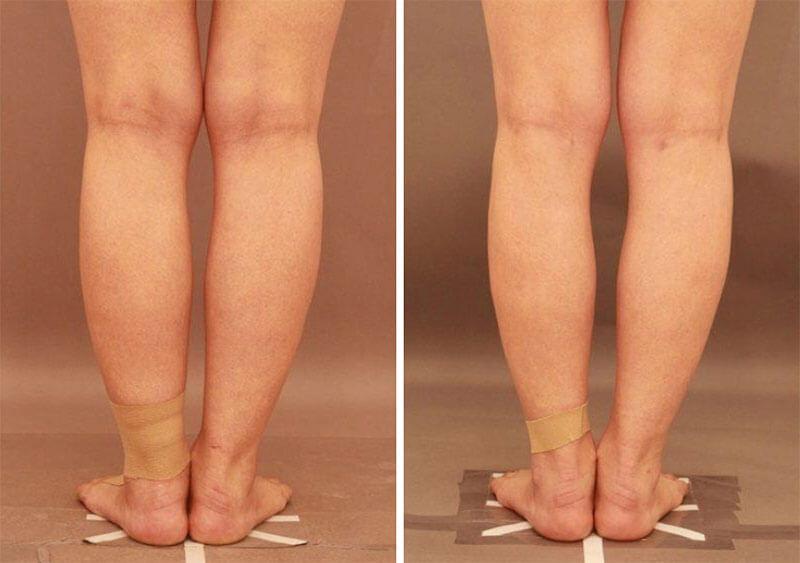 ふくらはぎの脂肪吸引 半年経過/長野寛史オフィシャルブログ