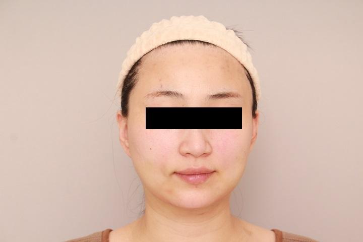 顔の脂肪吸引 翌日の状態