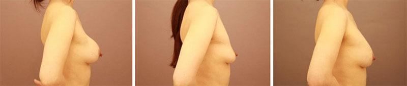 ヒアルロン酸を除去してからのコンデンスリッチ豊胸 半年経過/長野寛史オフィシャルブログ