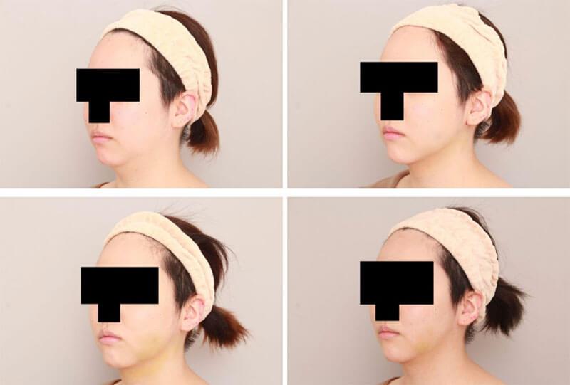 ほほ顎脂肪吸引の細かな経過/ボァイエ真希子オフィシャルブログ