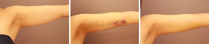 引用:二の腕 脂肪吸引 翌日~1週間 術後経過/長野寛史オフィシャルブログ