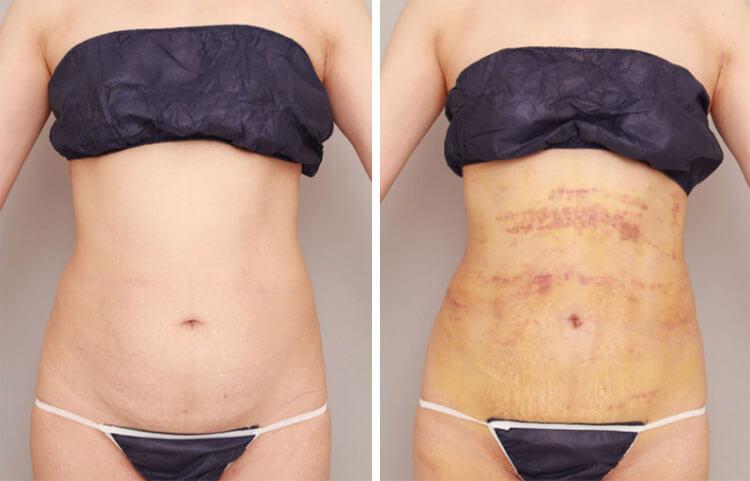 腰、お腹の脂肪吸引の1週間後の様子/ボァイエ真希子オフィシャルブログ