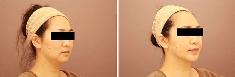 顎下の脂肪吸引 1か月経過/長野寛史オフィシャルブログ