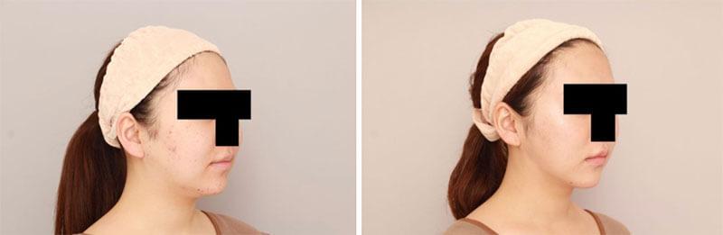 ほほ顎脂肪吸引3か月後/ボァイエ真希子オフィシャルブログ