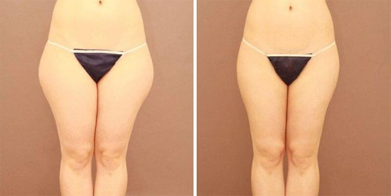 太ももの脂肪吸引 半年経過/長野寛史オフィシャルブログ