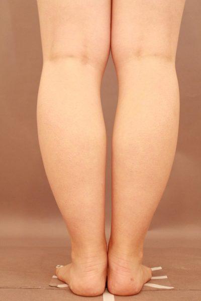 ふくらはぎの脂肪吸引 半年経過