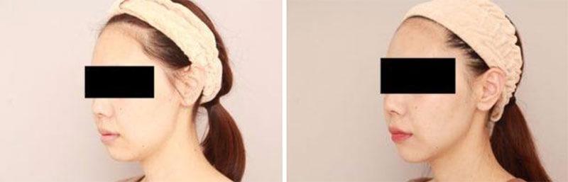 お顔の脂肪吸引 術後1カ月の経過/北條誠至オフィシャルブログ