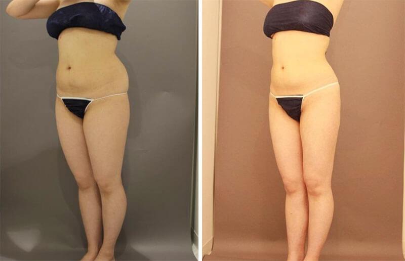 全身の脂肪吸引 半年経過/長野寛史オフィシャルブログ