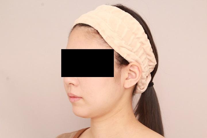 お顔の脂肪吸引 術後1ヵ月の経過