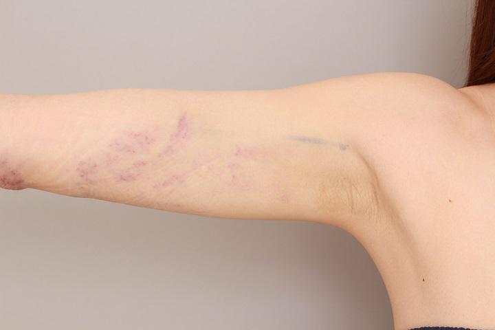 二の腕の脂肪吸引 翌日の内出血