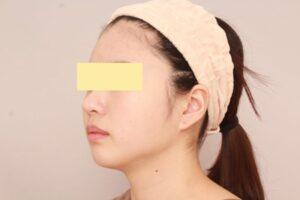 顔のベイザー脂肪吸引症例(術後1ヶ月)