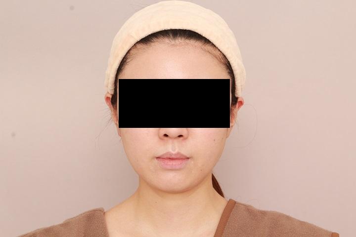 お顔の脂肪吸引 術後1カ月の経過