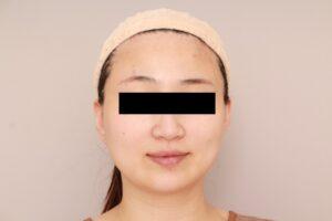 顔の脂肪吸引術前