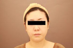 顔のベイザー脂肪吸引術前
