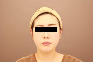 顔のベイザー脂肪吸引1週間後