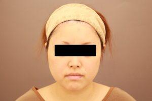 顔のベイザー脂肪吸引術前の様子