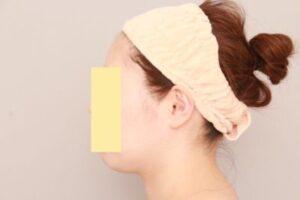 顔の脂肪吸引術前写真