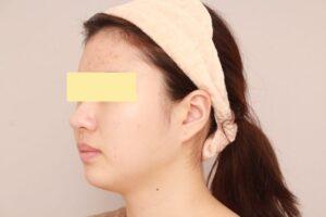 顔のベイザー脂肪吸引症例(術前)