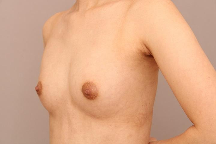 コンデンスリッチ豊胸 術後1ヵ月の経過