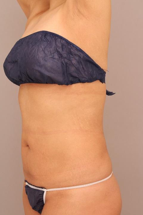 お腹・腰の脂肪吸引 術後3ヵ月の経過