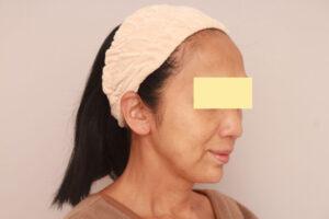 顔の脂肪吸引によるたるみ解消効果(術前)