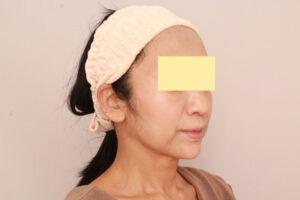 顔の脂肪吸引によるたるみ解消効果(術後3ヶ月)