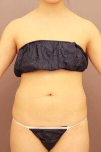 お腹の脂肪吸引術前