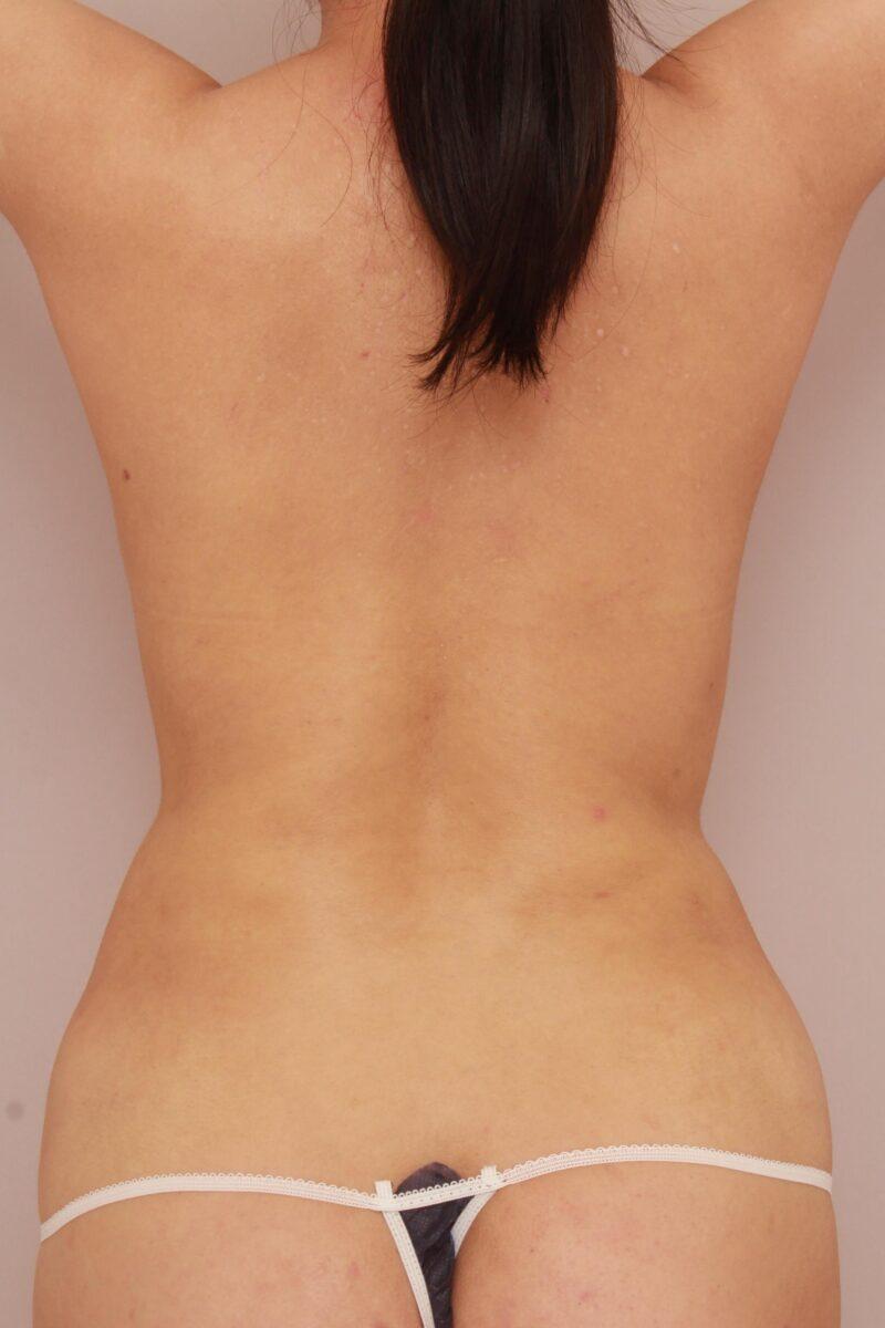 みんなで目指そう!峰不二子♡お腹全体、胸下、腰の脂肪吸引半年後