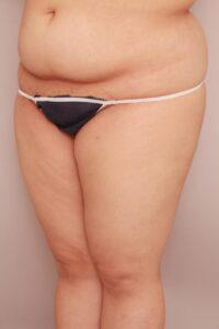 太ももの脂肪吸引術前(BMI高めの方)