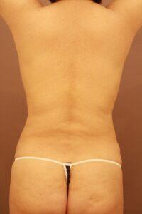 腰の脂肪吸引術後1ヶ月の経過写真