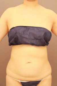 お腹の脂肪吸引術後(他院修正)