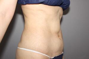 お腹の脂肪吸引によるトラブル:凸凹